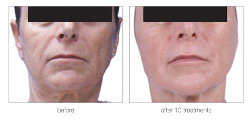 Venus Legacy   Dr. Shaun Parson Plastic Surgery and Skin Center   Scottsdale, Arizona