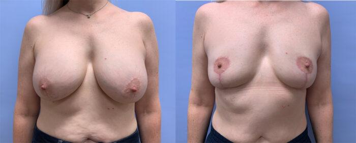 Explant Patient 15 | Dr. Shaun Parson Plastic Surgery
