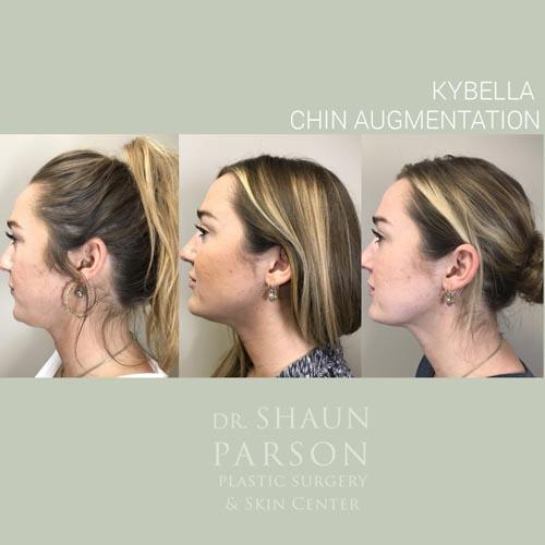 Kybella | Dr. Shaun Parson Plastic Surgery and Skin Center | Scottsdale, Arizona