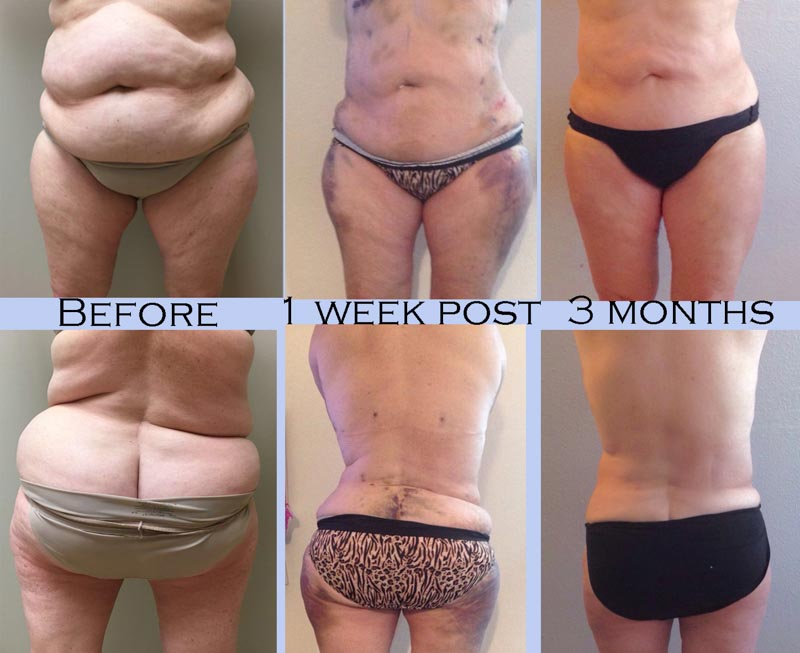 Liposuction | Dr. Shaun Parson Plastic Surgery and Skin Center | Scottsdale, Arizona