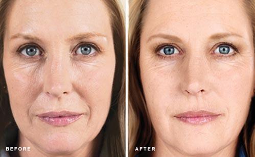 Sculptra | Dr. Shaun Parson Plastic Surgery and Skin Center | Scottsdale, Arizona