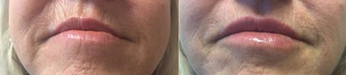 Fillers | Dr. Shaun Parson Plastic Surgery and Skin Center | Scottsdale, Arizona