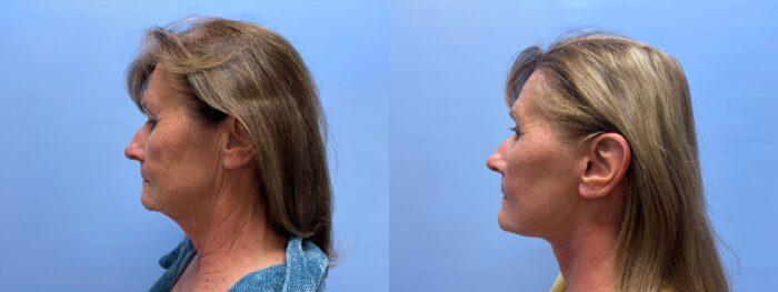 Facelift Patient 24 | Dr. Shaun Parson Plastic Surgery