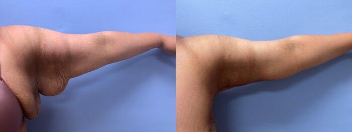 Arm Lift Patient 4 | Scottsdale Plastic Surgeon, Dr. Shaun Parson