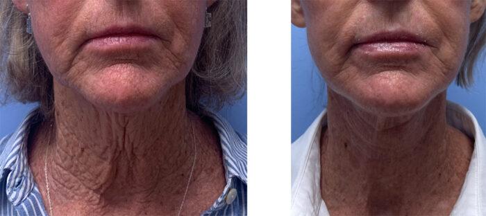 Necklift Patient 23 | Scottsdale Plastic Surgeon | Dr. Shaun Parson