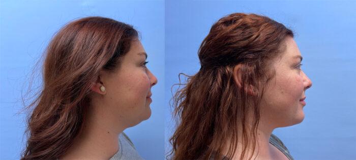 Liposuction Patient 21 | Scottsdale Plastic Surgeon, Dr. Shaun Parson