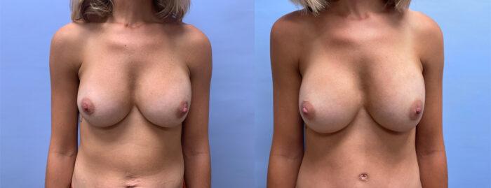 Breast Revision Patient 18 | Dr. Shaun Parson Plastic Surgery & Skin Center, Scottsdale
