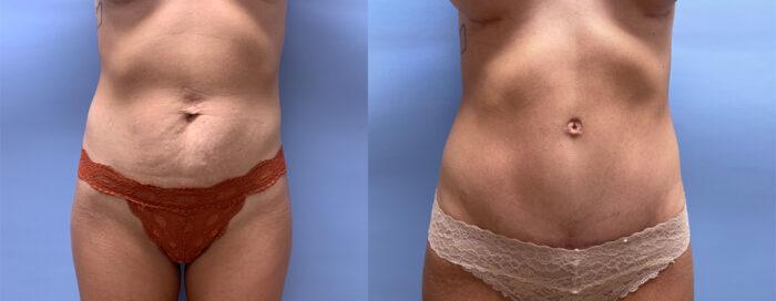 Tummy Tuck Patient 40   Scottsdale Plastic Surgeon, Dr. Shaun Parson