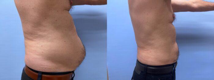 Liposuction Patient 22 | Scottsdale Plastic Surgeon, Dr. Shaun Parson