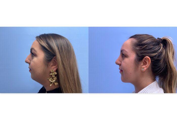 Rhinoplasty Patient 10 | Dr. Shaun Parson Plastic Surgery, Scottsdale