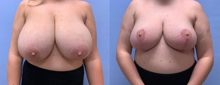 Breast Lift Patient 22   Scottsdale Plastic Surgeon, Dr. Shaun Parson