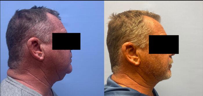 Liposuction Patient 22 | Dr. Shaun Parson Plastic Surgery